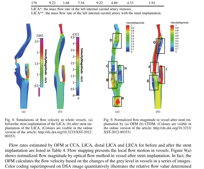 Hemodynamic analysis of vascular stenting treatment outcome: Computational fluid dynamics method vs optical flow method, published in Journal of X-Ray Science and Technology, Volume 20, 2012, 469–481